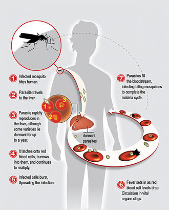 Malaria infects around 215 million people globally each year and kills more than 660,000